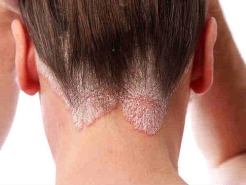 6 bệnh da liễu thường gặp ở người lớn và cách điều trị